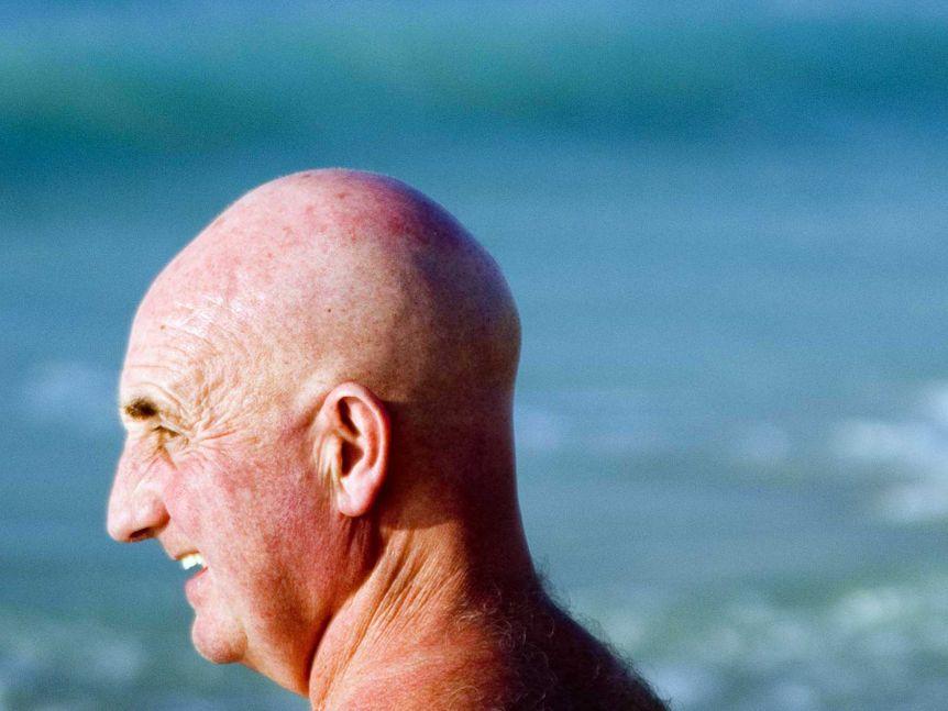 Baldness and COVID-19-12385322-4x3-xlarge-jpg